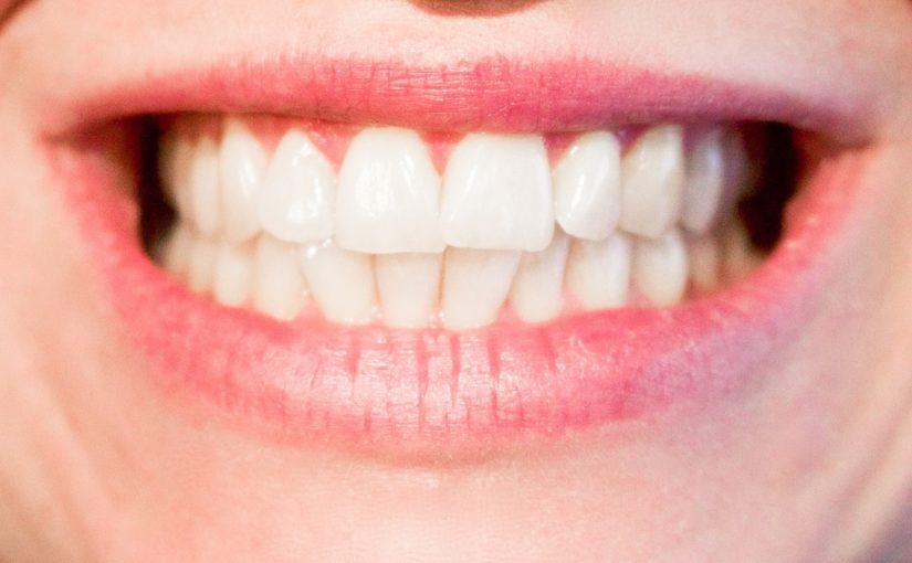 Nowoczesna technika wykorzystywana w salonach stomatologii estetycznej może spowodować, że odbierzemy piękny uśmiech.