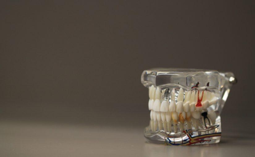 Zły sposób żywienia się to większe niedobory w jamie ustnej oraz także ich zgubę